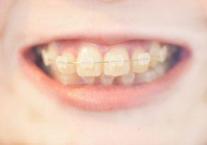 歯科矯正 ブリッジ